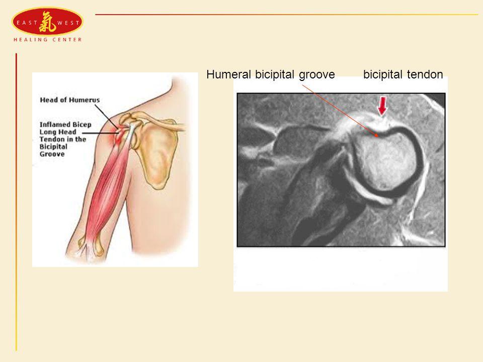 bicipital tendonHumeral bicipital groove