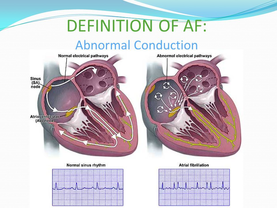 DEFINITION OF AF: Abnormal Conduction