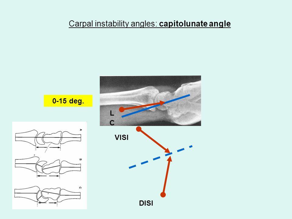 Carpal instability angles: radioscaphoid angle 120 – 150 deg.