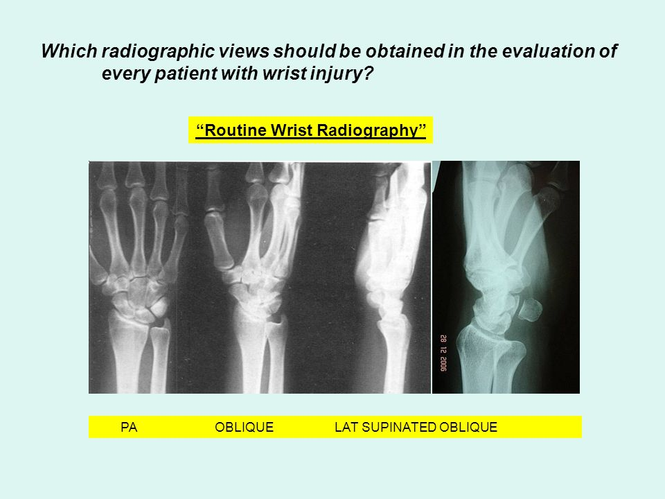"PA OBLIQUE LAT SUPINATED OBLIQUE Which radiographic views should be obtained in the evaluation of every patient with wrist injury? ""Routine Wrist Radi"