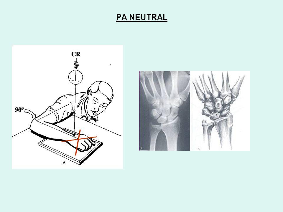 quadrangular Distal ( low position ) Proximal ( high position ) LUNATE TRIQUETRUM PA ULNAR-DEVIATION Proximal raw palmarflexes Proximal raw dorsiflexes SCAPHOID triangular foreshortenedelongated PA RADIAL- DEVIATION