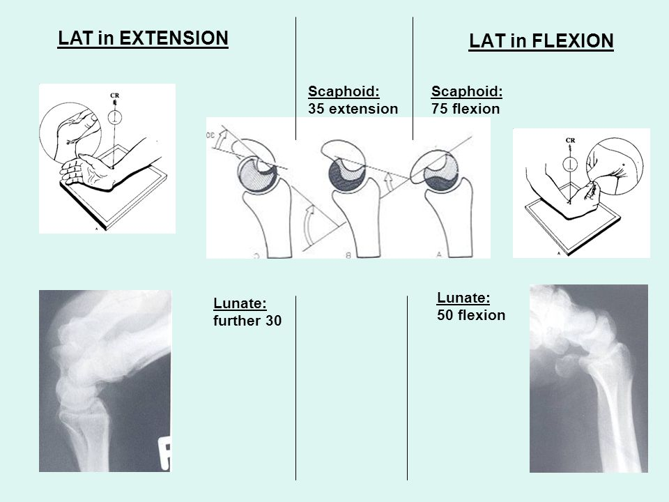 LAT in FLEXION LAT in EXTENSION Scaphoid: 75 flexion Scaphoid: 35 extension Lunate: 50 flexion Lunate: further 30