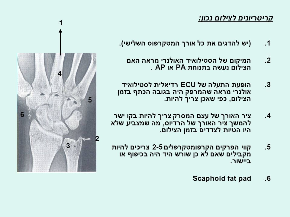 Why is it important to obtain adequate PA view of the wrist.