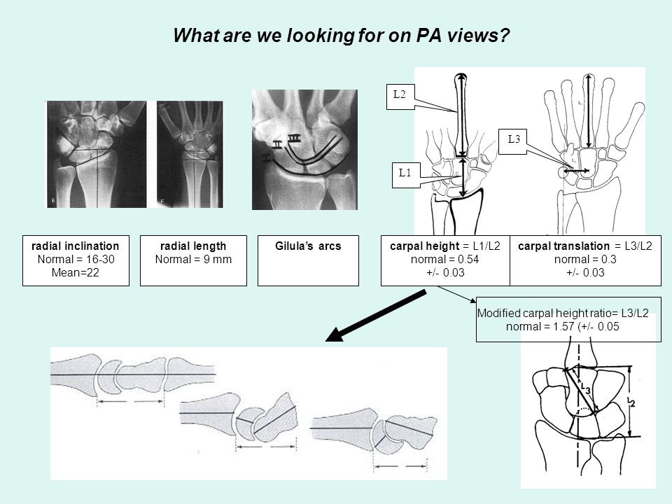 What are we looking for on PA views? radial inclination Normal = 16-30 Mean=22 radial length Normal = 9 mm carpal height = L1/L2 normal = 0.54 +/- 0.0