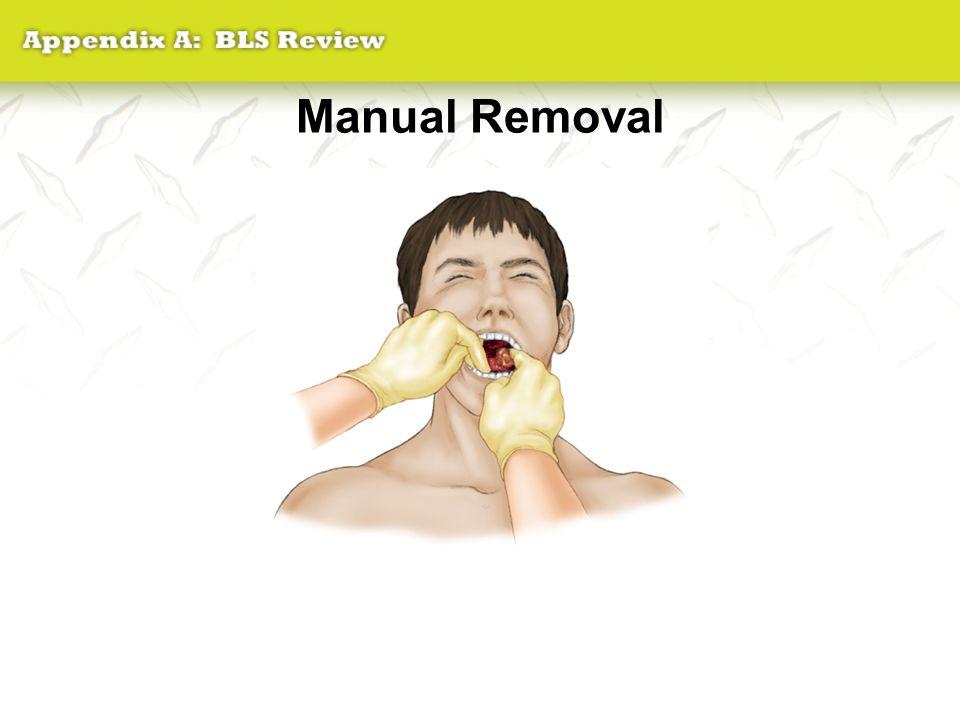 Manual Removal