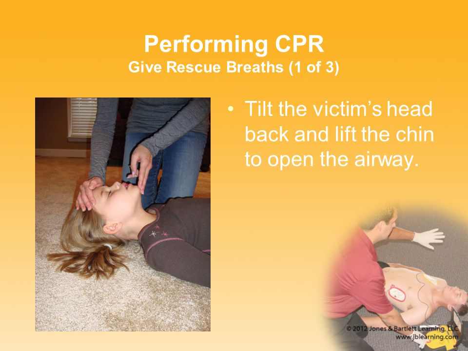 Performing CPR Give Rescue Breaths (1 of 3) Tilt the victim's head back and lift the chin to open the airway.