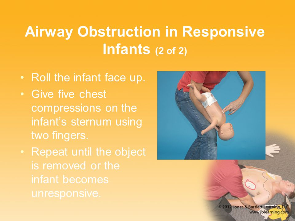 Airway Obstruction in Responsive Infants (2 of 2) Roll the infant face up. Give five chest compressions on the infant's sternum using two fingers. Rep
