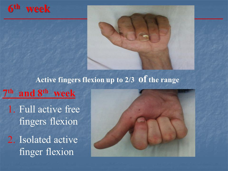 6 th week Active fingers flexion up to 2/3 of the range 7 th and 8 th week 1.Full active free fingers flexion 2.Isolated active finger flexion
