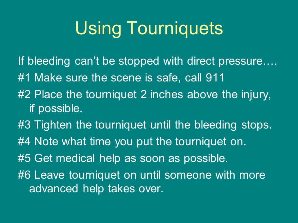 Using Tourniquets If bleeding can't be stopped with direct pressure….