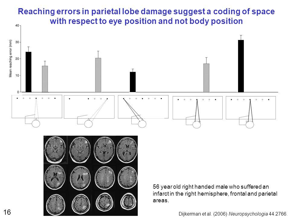 16 Dijkerman et al.(2006) Neuropsychologia 44:2766.
