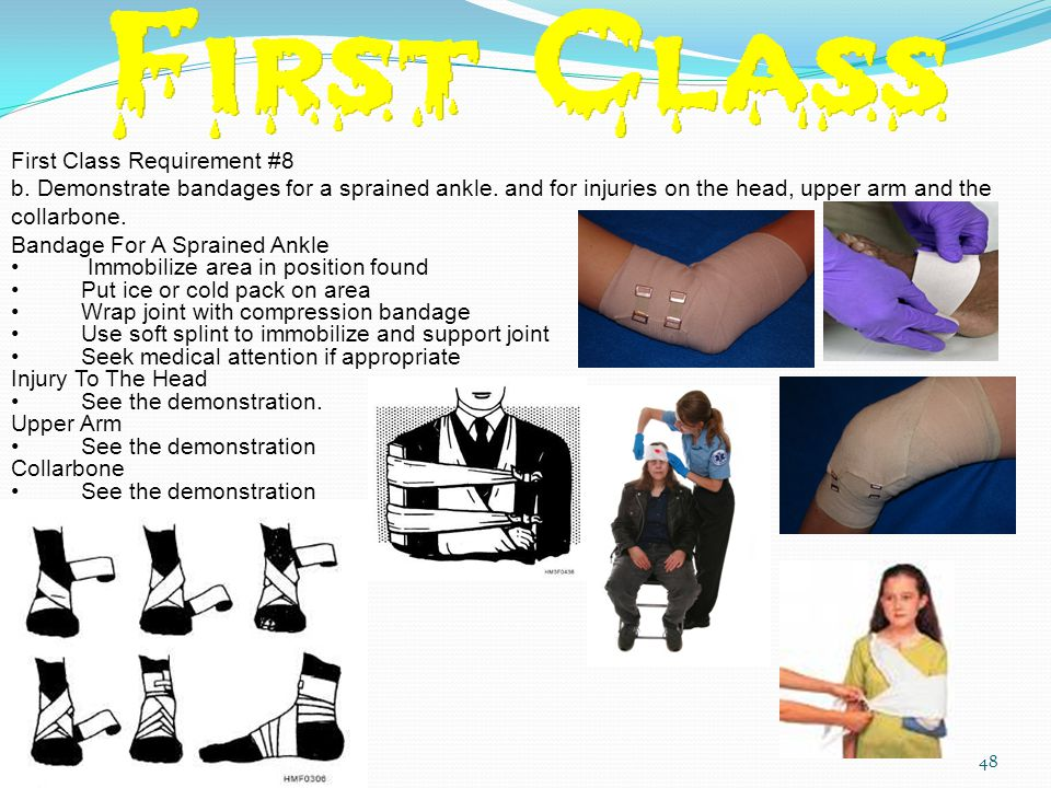 First Class Requirement #8 b.Demonstrate bandages for a sprained ankle.