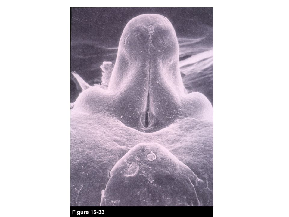 Development of female External genitalia