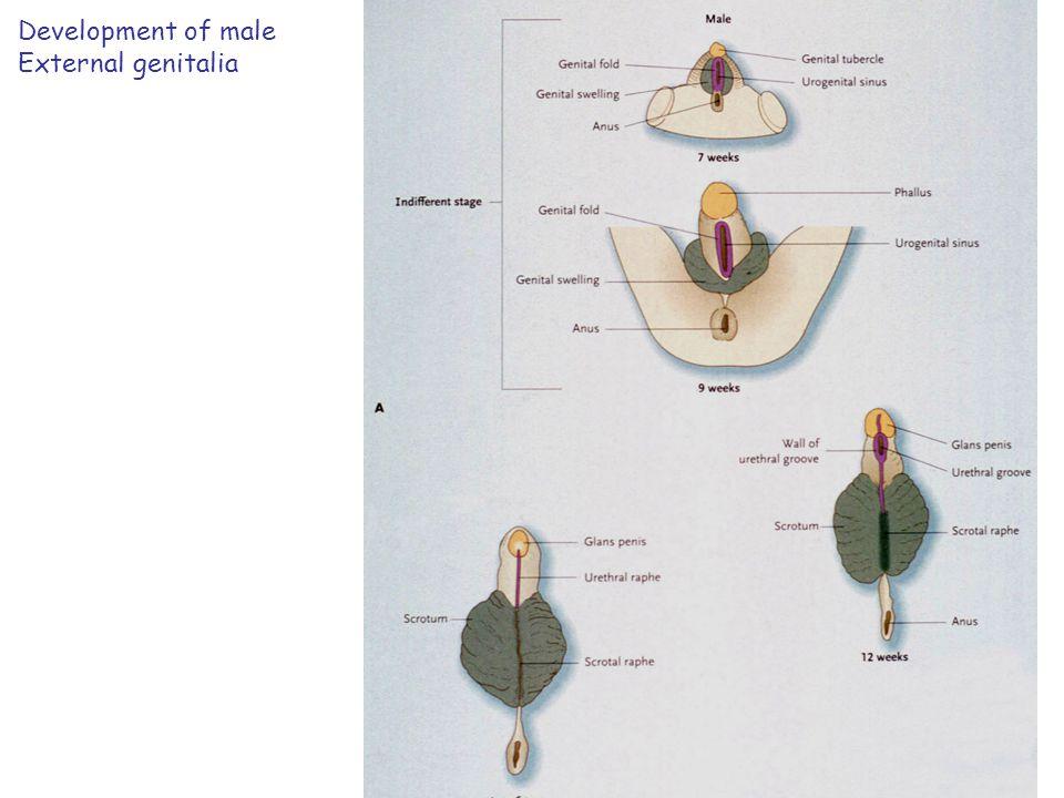 Congenital female abnormalitites A-double uterus & vaginaB- double uterus, single vagina C- Bicornuate uterusD- Septate uterus E- Unicornuate uterusF- Atresia of the cervix