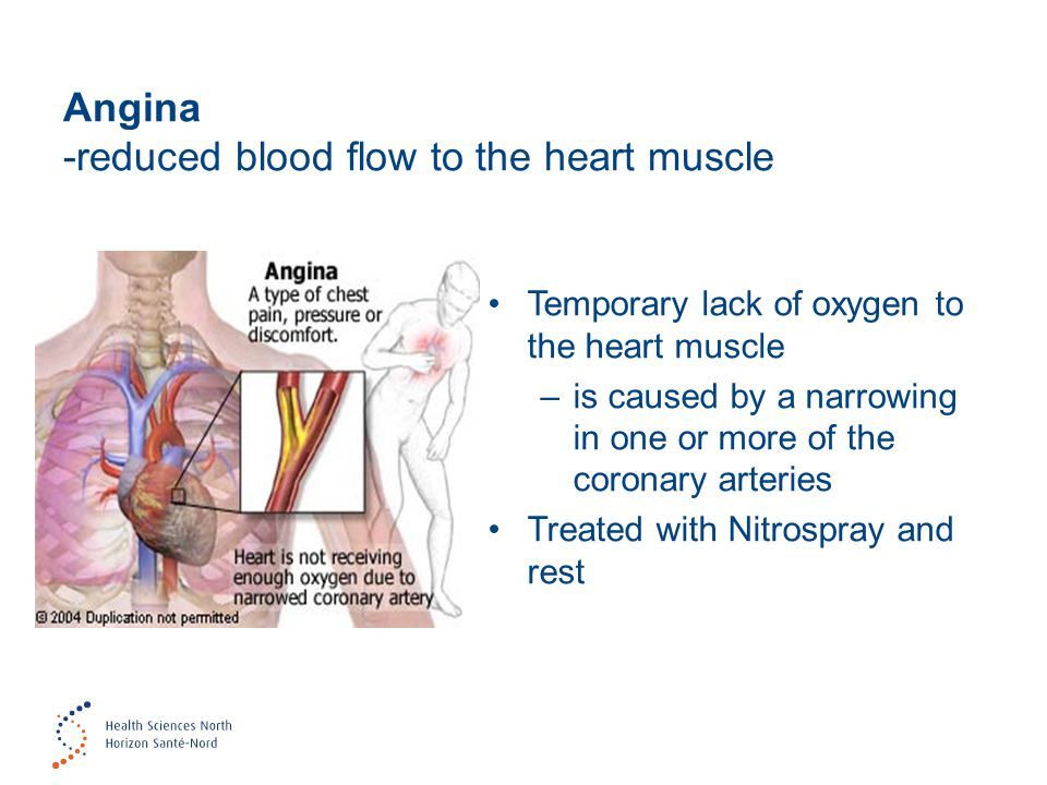 Angina -reduced blood flow to the heart muscle Temporary lack of oxygen to the heart muscle –is caused by a narrowing in one or more of the coronary arteries Treated with Nitrospray and rest