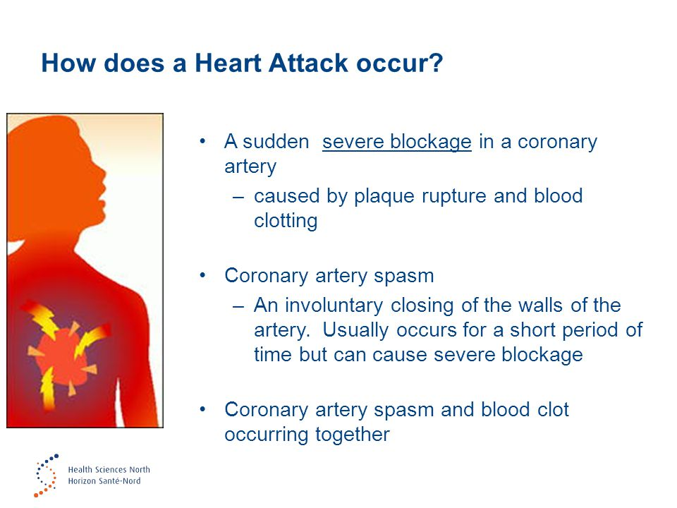 How does a Heart Attack occur.