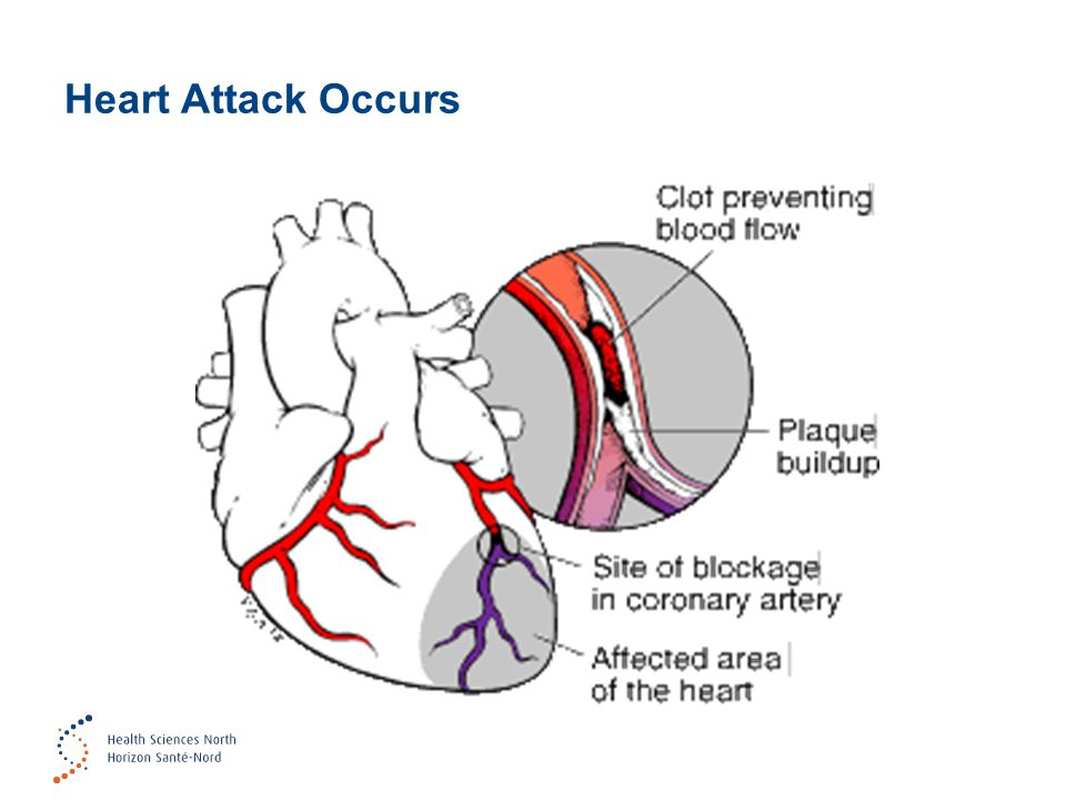 Heart Attack Occurs