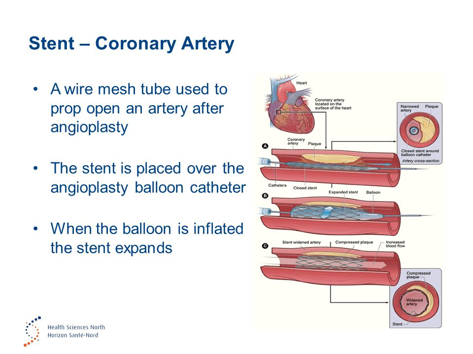 Stent – Coronary Artery A wire mesh tube used to prop open an artery after angioplasty The stent is placed over the angioplasty balloon catheter When