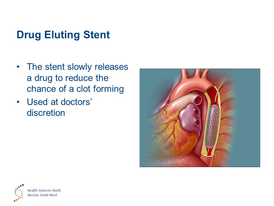Drug Eluting Stent The stent slowly releases a drug to reduce the chance of a clot forming Used at doctors' discretion