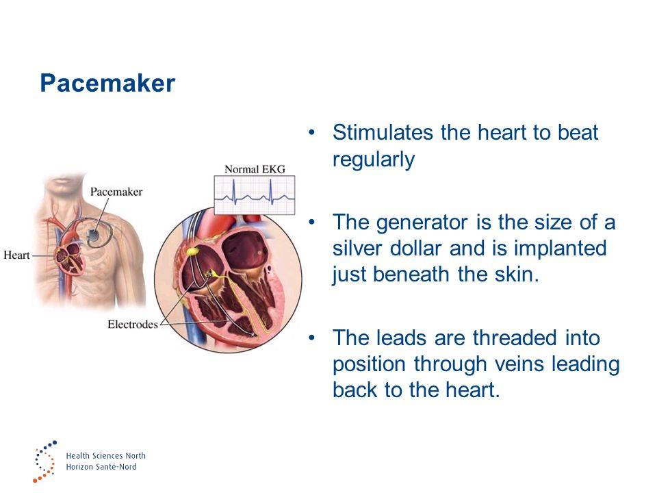 Pacemaker Stimulates the heart to beat regularly The generator is the size of a silver dollar and is implanted just beneath the skin.