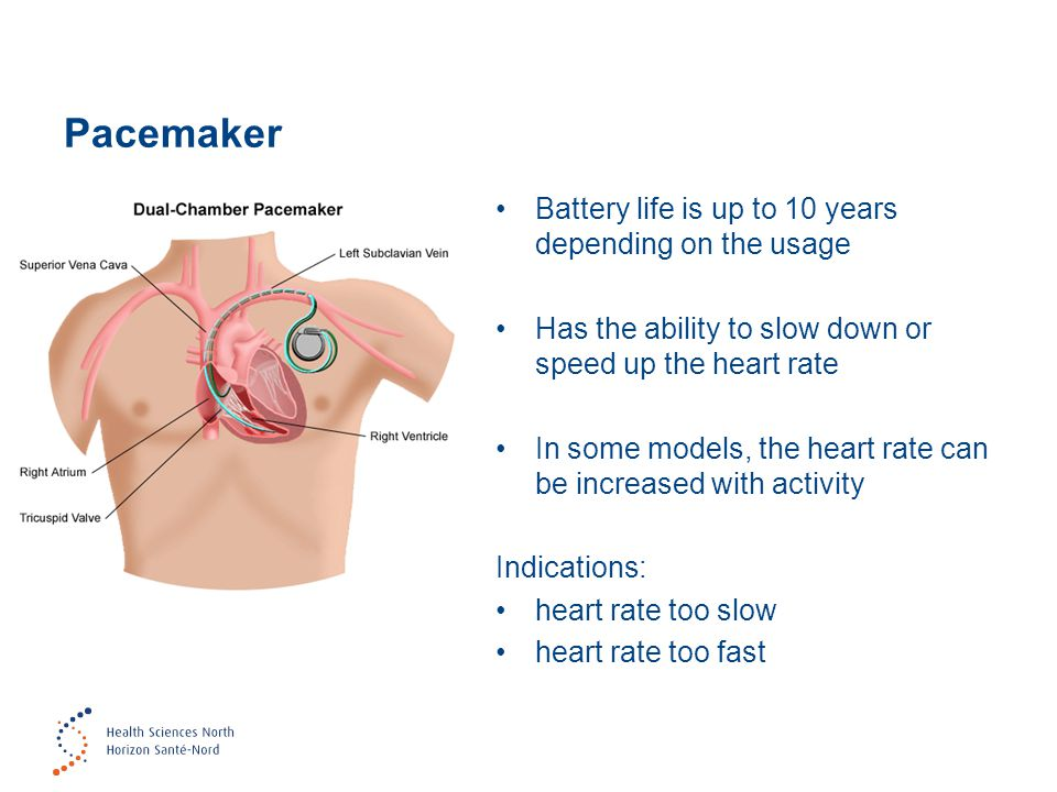 Pacemaker Battery life is up to 10 years depending on the usage Has the ability to slow down or speed up the heart rate In some models, the heart rate