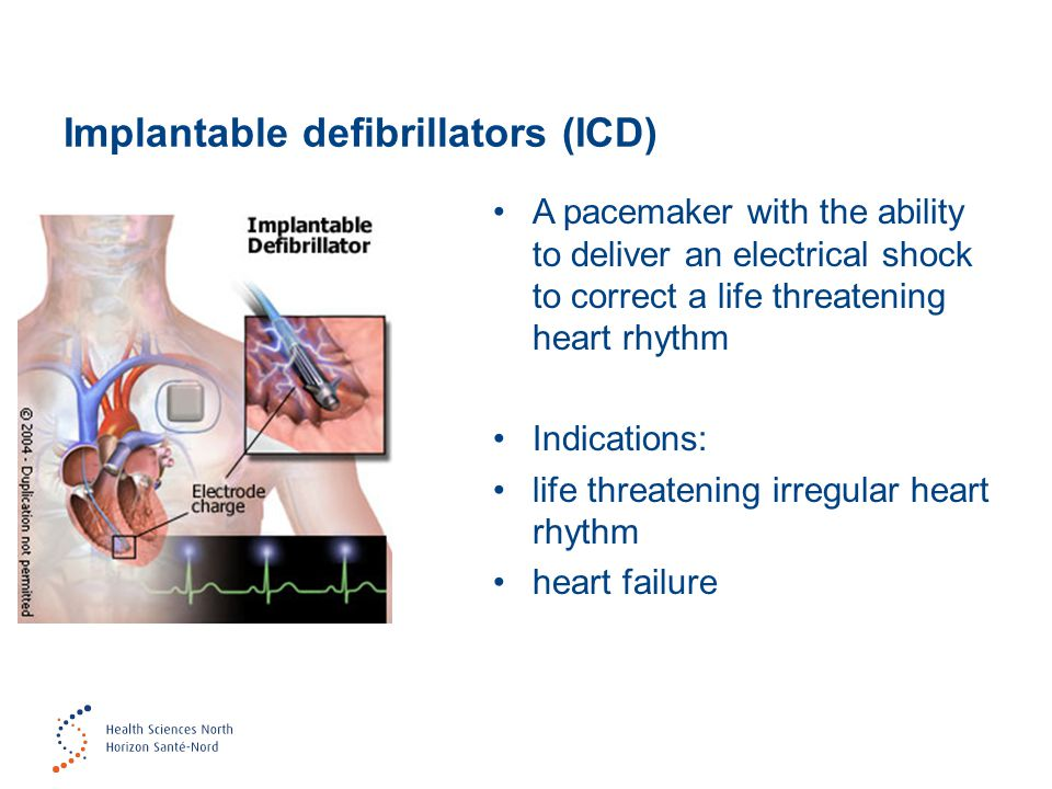 Implantable defibrillators (ICD) A pacemaker with the ability to deliver an electrical shock to correct a life threatening heart rhythm Indications: life threatening irregular heart rhythm heart failure