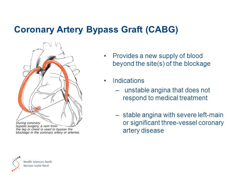 Coronary Artery Bypass Graft (CABG) Provides a new supply of blood beyond the site(s) of the blockage Indications – unstable angina that does not resp