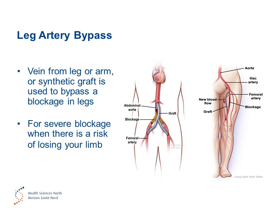 Leg Artery Bypass Vein from leg or arm, or synthetic graft is used to bypass a blockage in legs For severe blockage when there is a risk of losing your limb