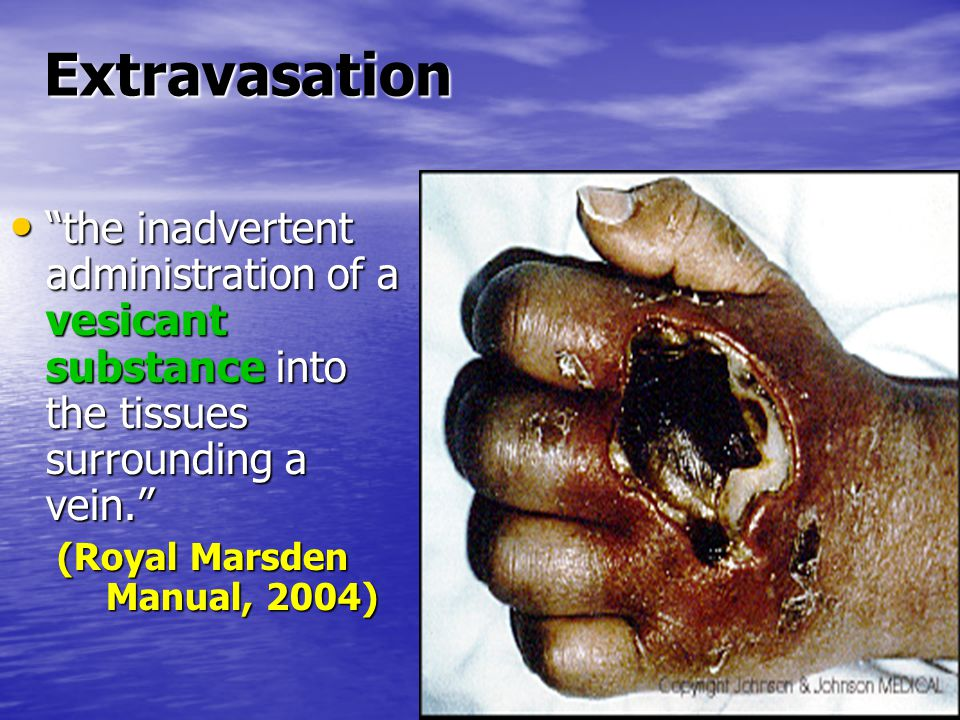Extravasation the inadvertent administration of a vesicant substance into the tissues surrounding a vein. the inadvertent administration of a vesicant substance into the tissues surrounding a vein. (Royal Marsden Manual, 2004) (Royal Marsden Manual, 2004)