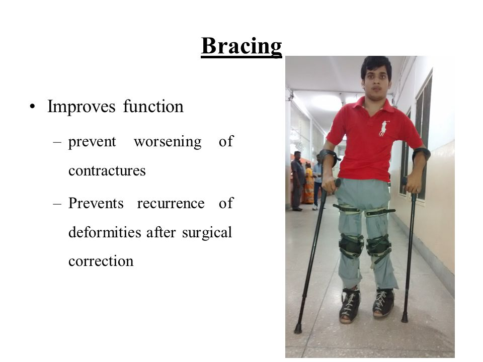 Bracing Improves function –prevent worsening of contractures –Prevents recurrence of deformities after surgical correction