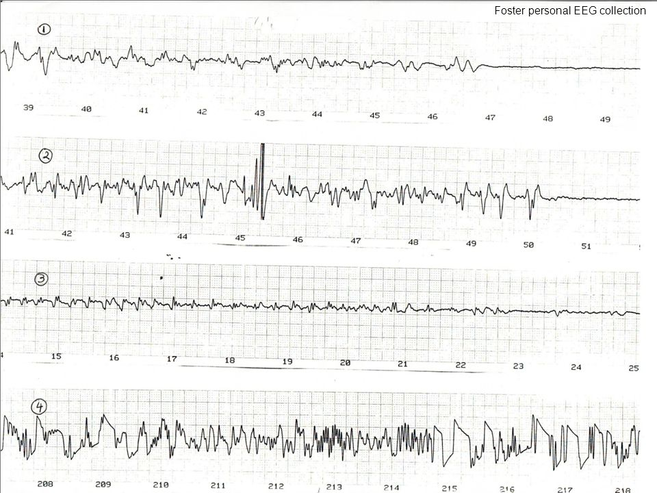 Foster personal EEG collection