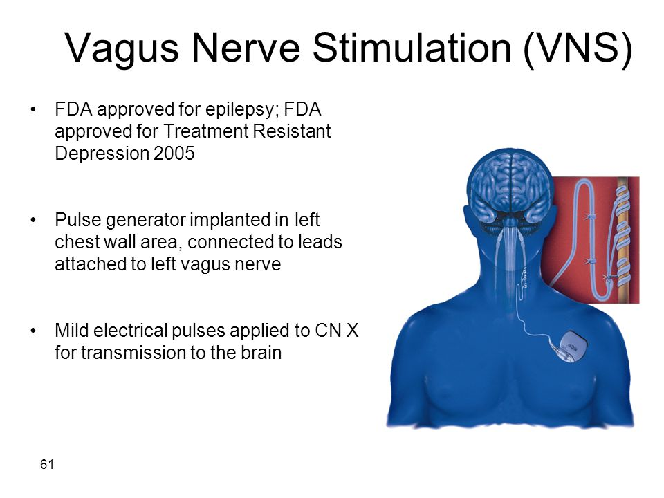 61 Vagus Nerve Stimulation (VNS) FDA approved for epilepsy; FDA approved for Treatment Resistant Depression 2005 Pulse generator implanted in left chest wall area, connected to leads attached to left vagus nerve Mild electrical pulses applied to CN X for transmission to the brain