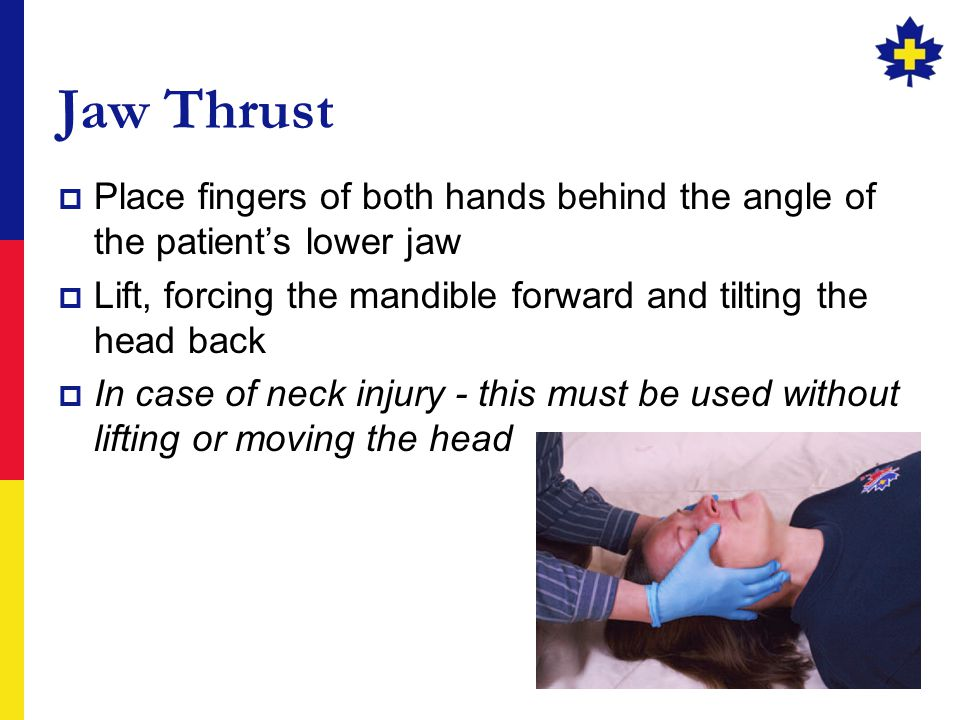 8 Jaw Thrust  Place fingers of both hands behind the angle of the patient's lower jaw  Lift, forcing the mandible forward and tilting the head back  In case of neck injury - this must be used without lifting or moving the head