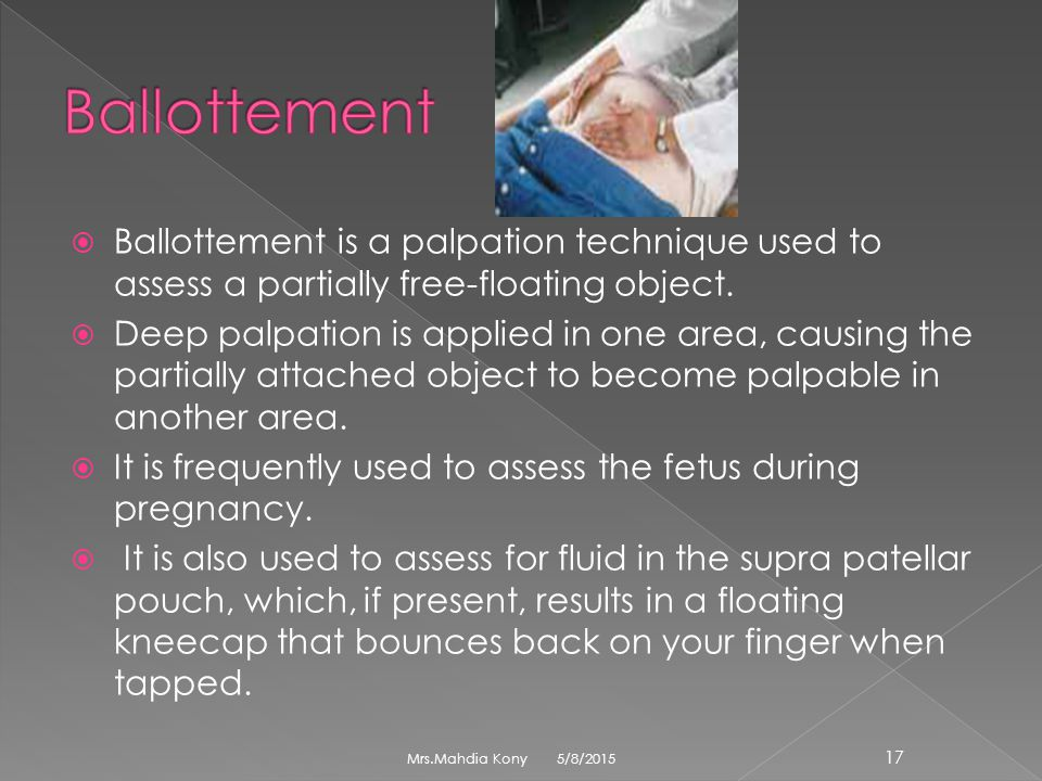 Ballottement is a palpation technique used to assess a partially free-floating object.  Deep palpation is applied in one area, causing the partiall