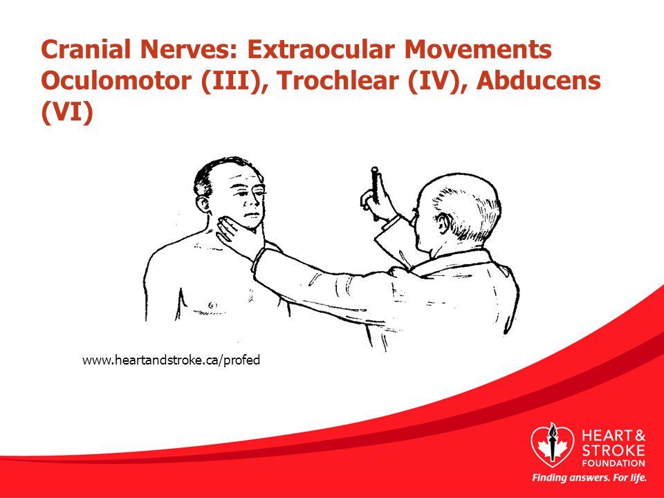 Cranial Nerves: Extraocular Movements Oculomotor (III), Trochlear (IV), Abducens (VI) www.heartandstroke.ca/profed