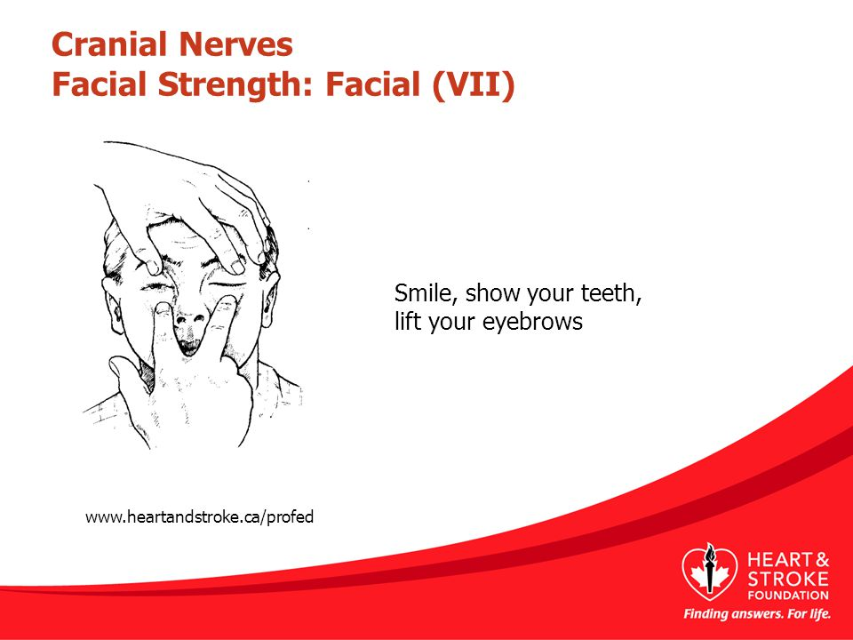 Cranial Nerves Facial Strength: Facial (VII) Smile, show your teeth, lift your eyebrows www.heartandstroke.ca/profed