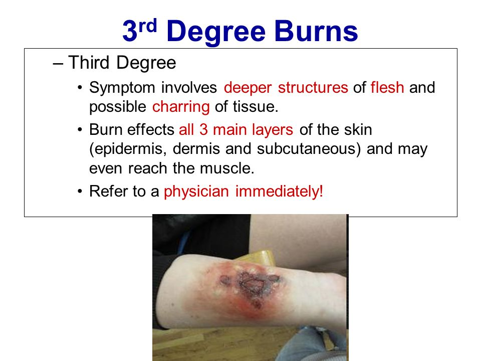 3 rd Degree Burns –Third Degree Symptom involves deeper structures of flesh and possible charring of tissue. Burn effects all 3 main layers of the ski