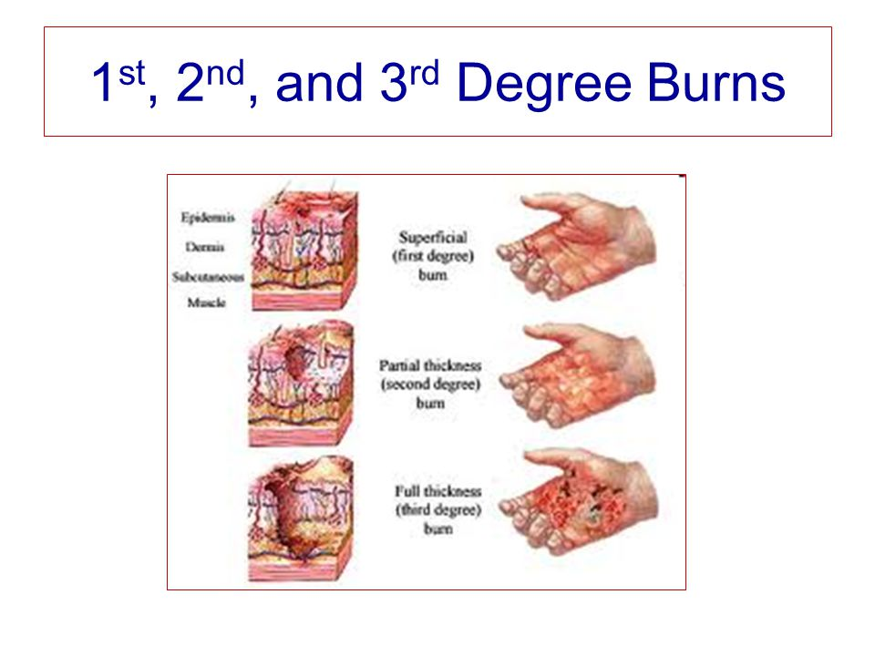 1 st, 2 nd, and 3 rd Degree Burns