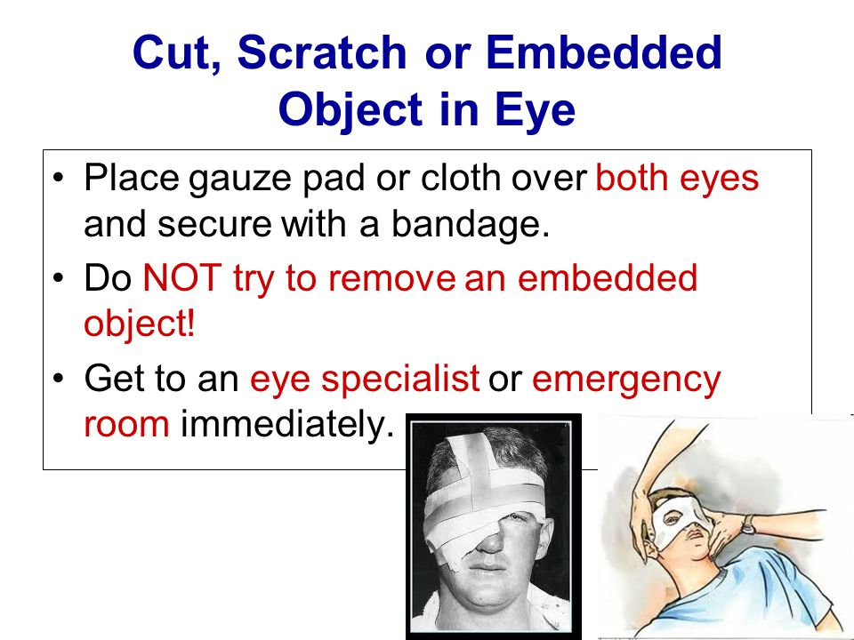 Cut, Scratch or Embedded Object in Eye Place gauze pad or cloth over both eyes and secure with a bandage. Do NOT try to remove an embedded object! Get