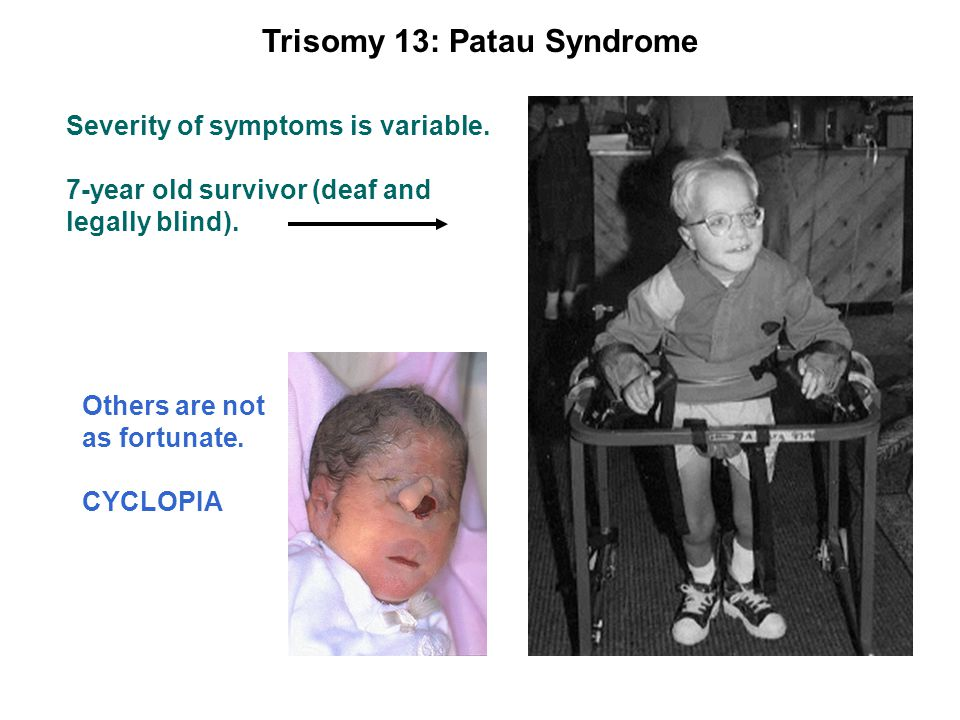Trisomy 13: Patau Syndrome Severity of symptoms is variable.