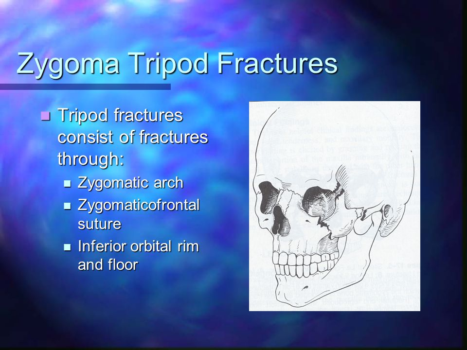 Zygoma Tripod Fractures Tripod fractures consist of fractures through: Tripod fractures consist of fractures through: Zygomatic arch Zygomatic arch Zy