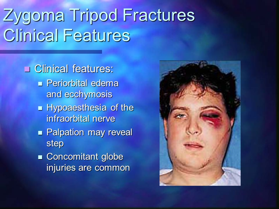 Zygoma Tripod Fractures Clinical Features Clinical features: Clinical features: Periorbital edema and ecchymosis Periorbital edema and ecchymosis Hypo