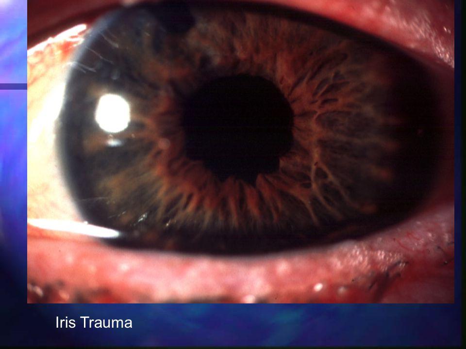 Iris Trauma
