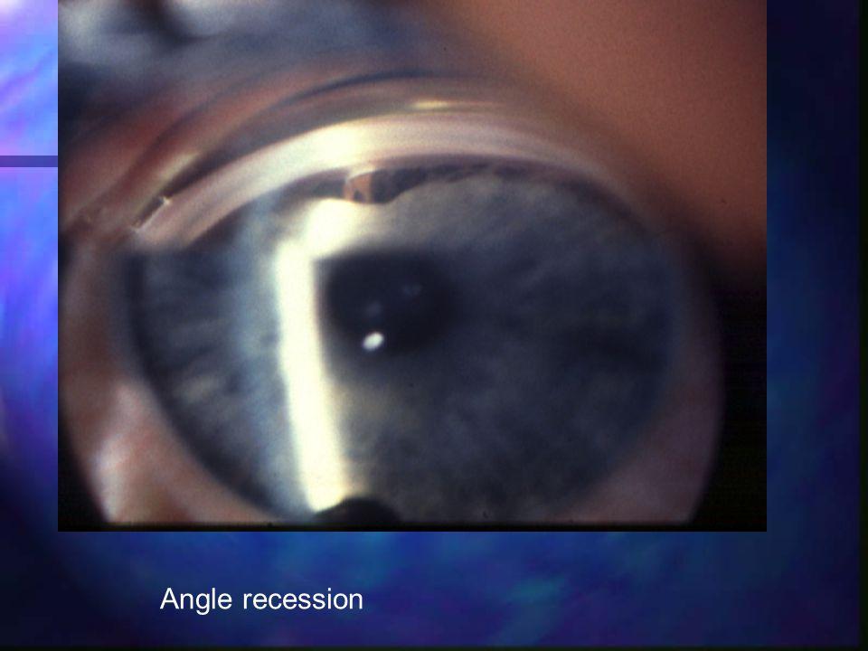 Angle recession