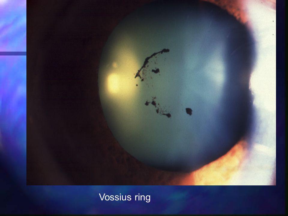 Vossius ring
