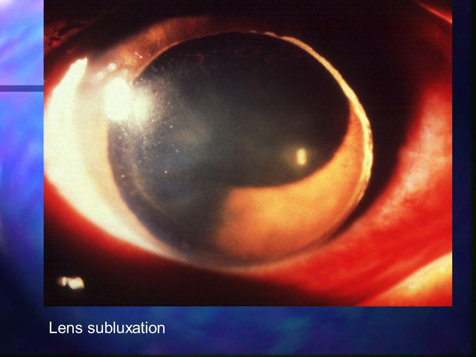 Lens subluxation