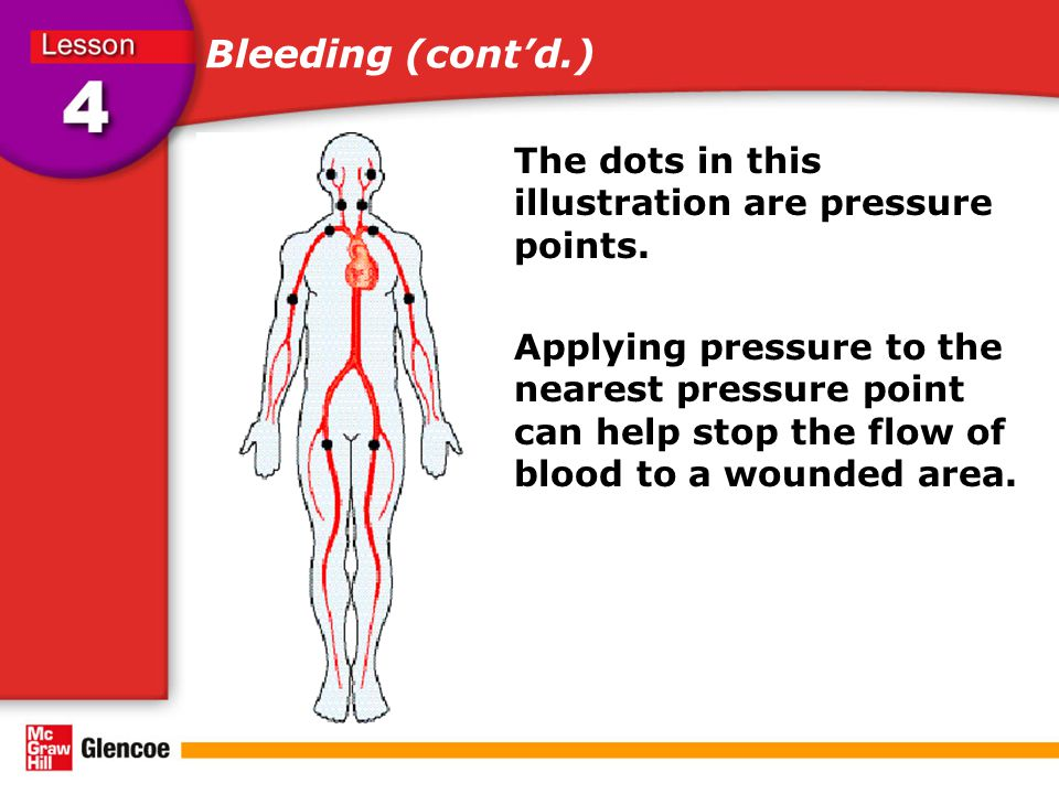 Bleeding (cont'd.) The dots in this illustration are pressure points. Applying pressure to the nearest pressure point can help stop the flow of blood