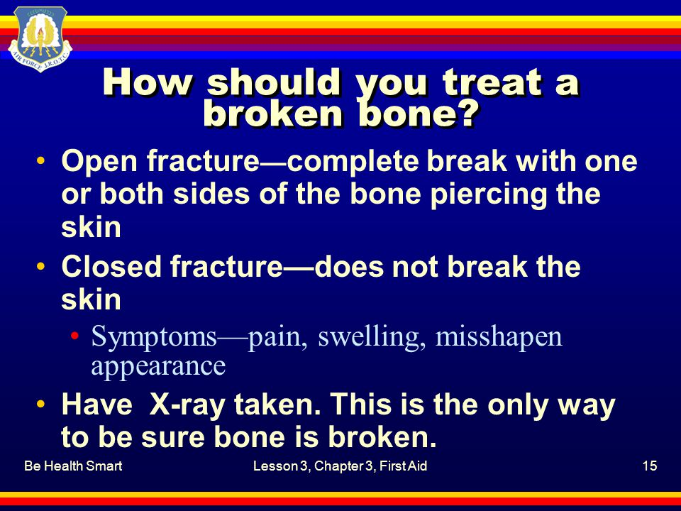 Be Health SmartLesson 3, Chapter 3, First Aid15 How should you treat a broken bone.