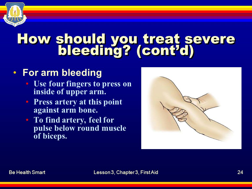 Be Health SmartLesson 3, Chapter 3, First Aid24 How should you treat severe bleeding.