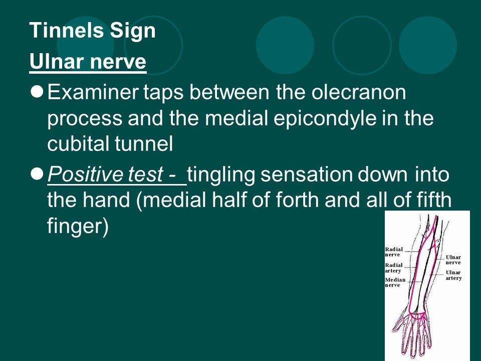 Tinnels Sign Ulnar nerve Examiner taps between the olecranon process and the medial epicondyle in the cubital tunnel Positive test - tingling sensation down into the hand (medial half of forth and all of fifth finger)