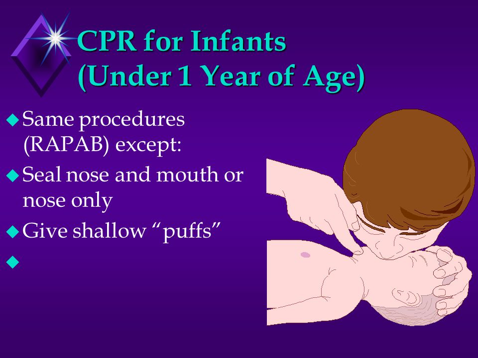 CPR for Infants (Under 1 Year of Age) u Same procedures (RAPAB) except: u Seal nose and mouth or nose only u Give shallow puffs u